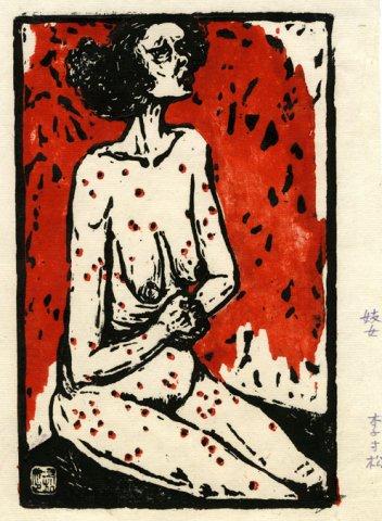 prostituee albanaise